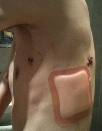 Наложение окклюзионной повязки при открытом пневмотораксе