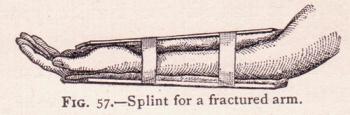 Наложение шины при переломах руки