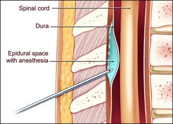 Спинномозговая и эпидуральная анестезия