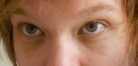 Узкие тёмные зрачки и мешки под глазаи при депривации сна