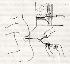 Проведение активного дренирования с помощью резиновой груши