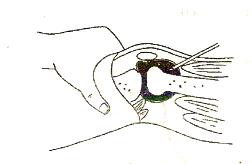 Пункция сустава